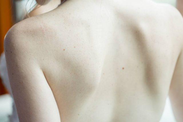 Bli av med värken hos en kiropraktor