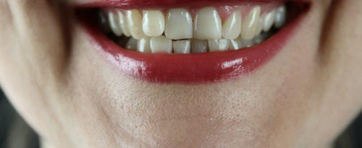 Besök tandläkare i Järfälla som arbetar förebyggande